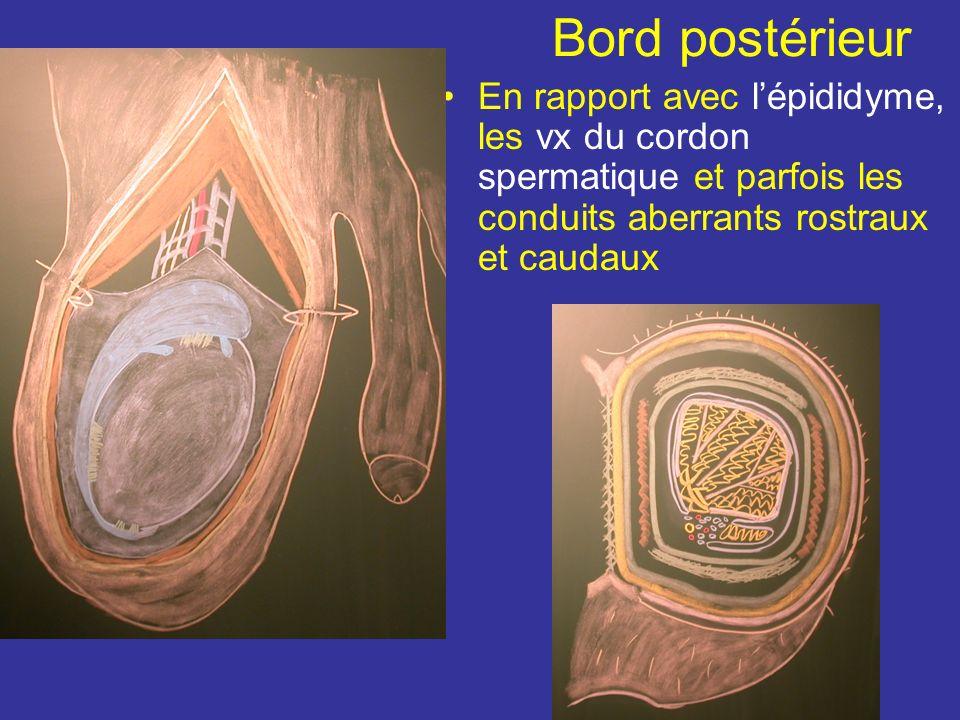 Bord postérieur En rapport avec l'épididyme, les vx du cordon spermatique et parfois les conduits aberrants rostraux et caudaux.