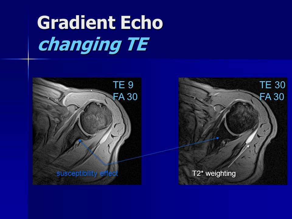 Gradient Echo changing TE