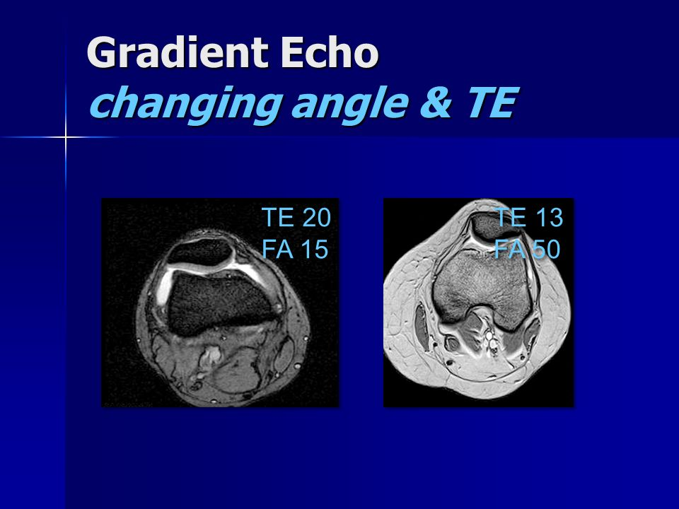 Gradient Echo changing angle & TE