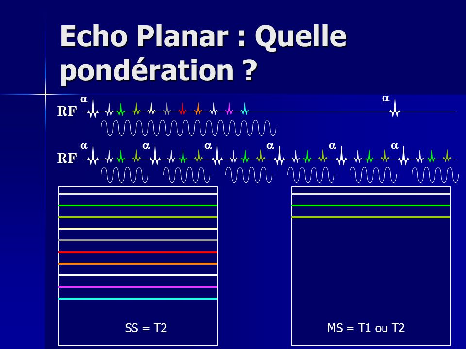 Echo Planar : Quelle pondération