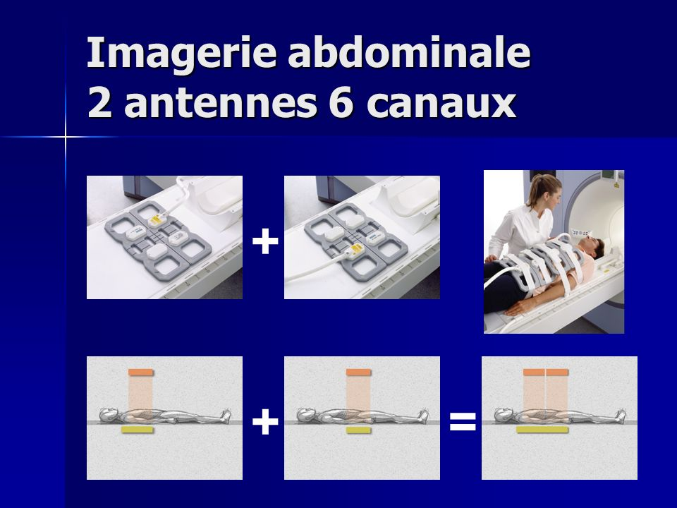 Imagerie abdominale 2 antennes 6 canaux