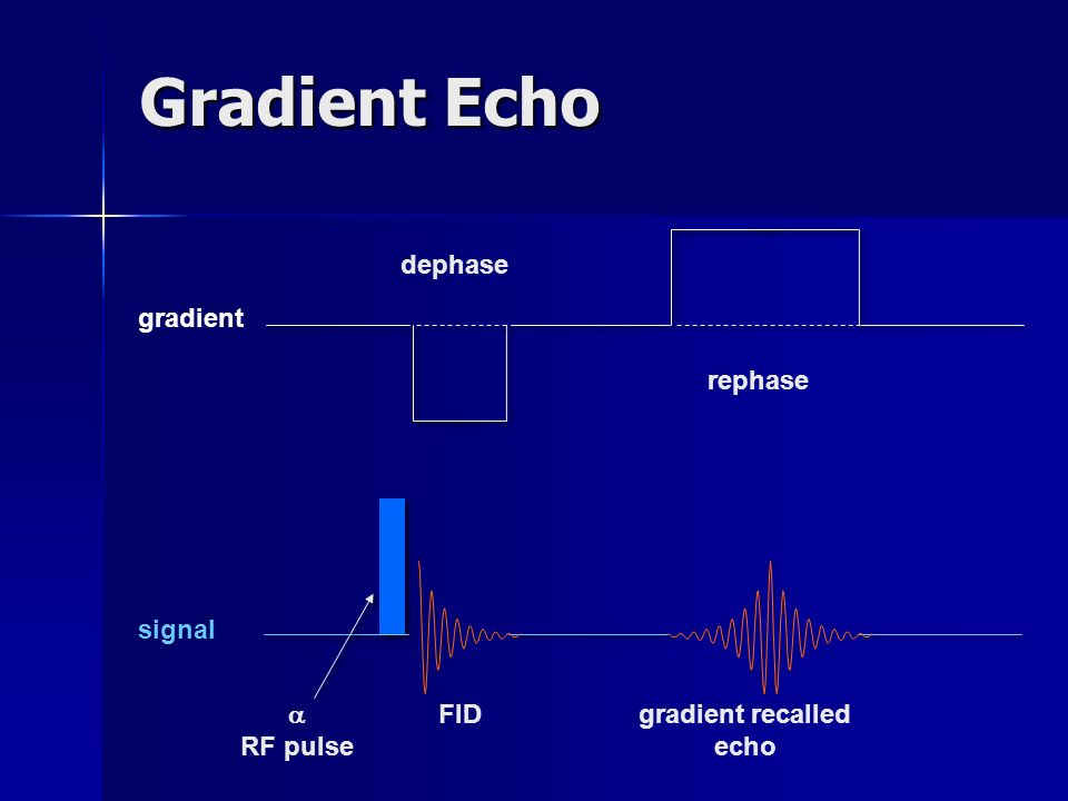 Gradient Echo dephase gradient rephase signal  RF pulse FID