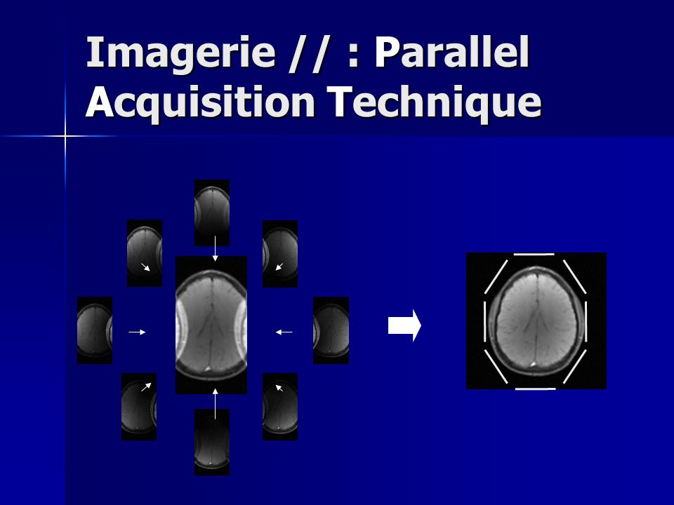 Imagerie // : Parallel Acquisition Technique