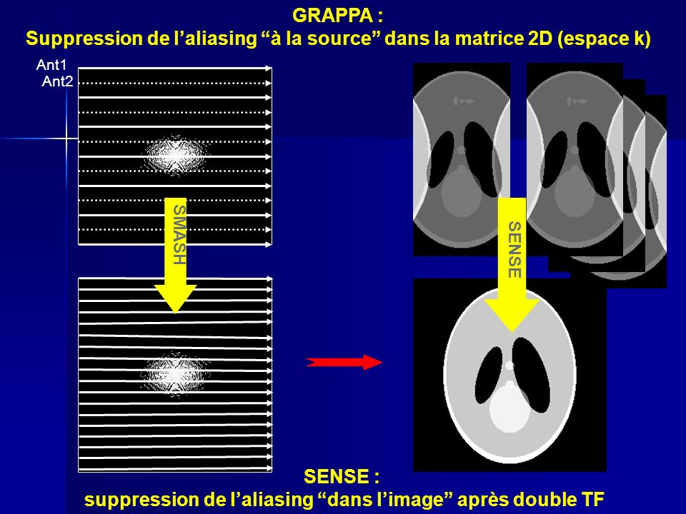Suppression de l'aliasing à la source dans la matrice 2D (espace k)