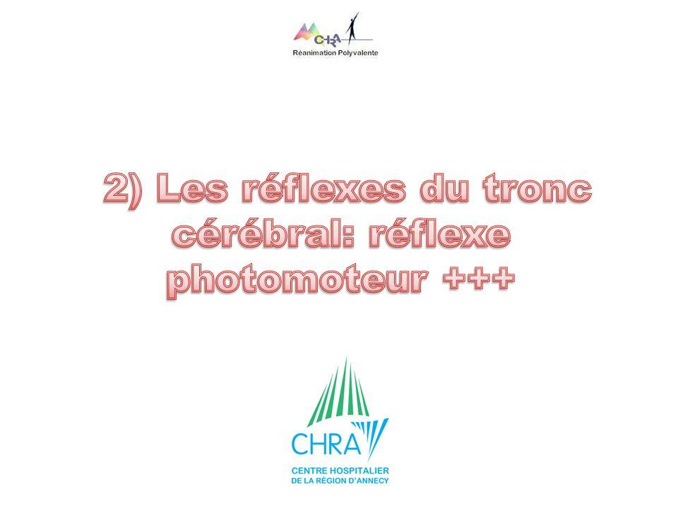 2) Les réflexes du tronc cérébral: réflexe photomoteur +++