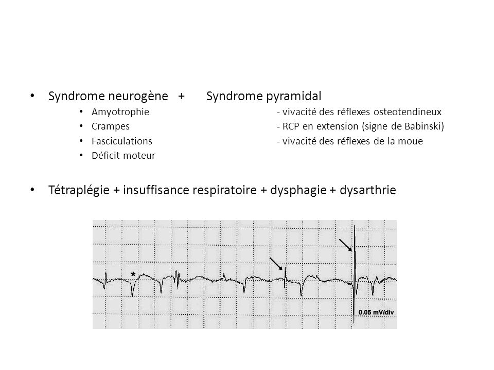 Syndrome neurogène + Syndrome pyramidal