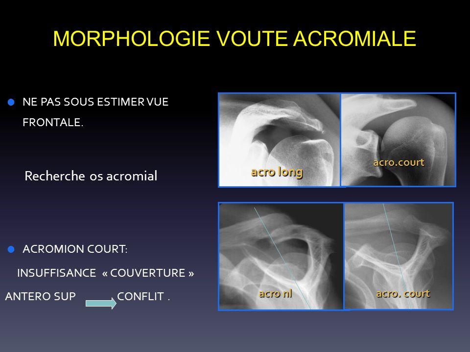 MORPHOLOGIE VOUTE ACROMIALE