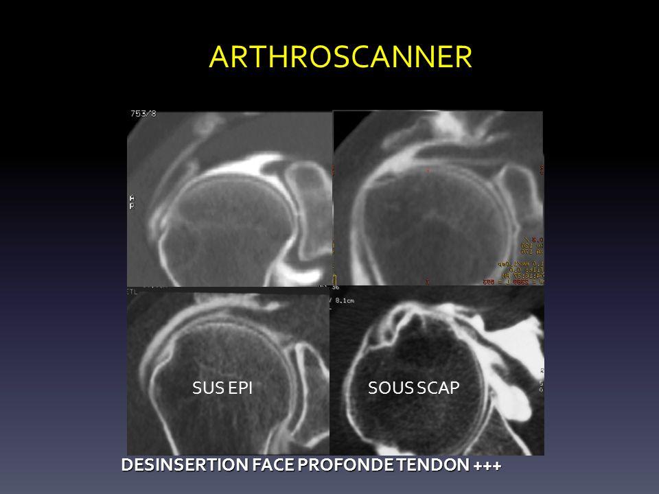 ARTHROSCANNER SUS EPI SOUS SCAP DESINSERTION FACE PROFONDE TENDON +++