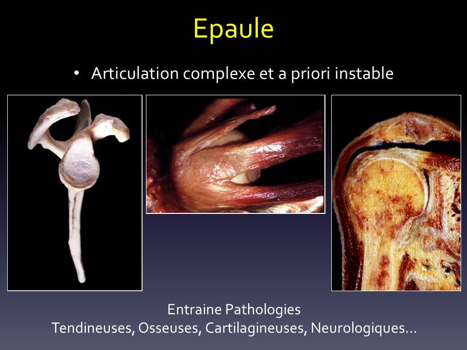 Epaule Articulation complexe et a priori instable Entraine Pathologies