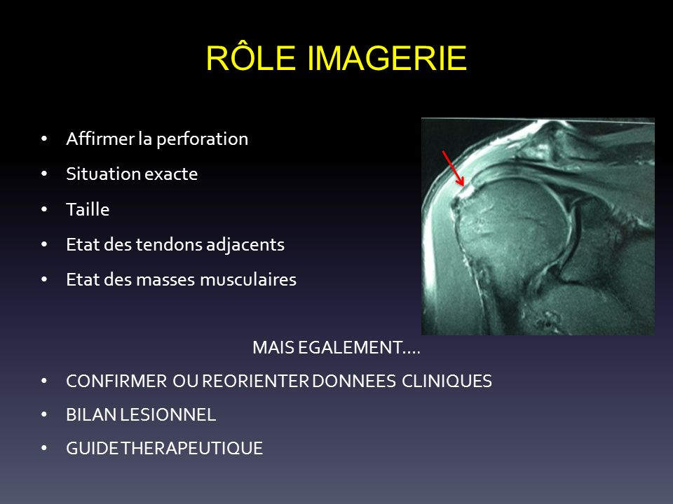 RÔLE IMAGERIE Affirmer la perforation Situation exacte Taille