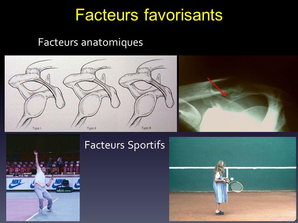 Facteurs favorisants Facteurs anatomiques Facteurs Sportifs