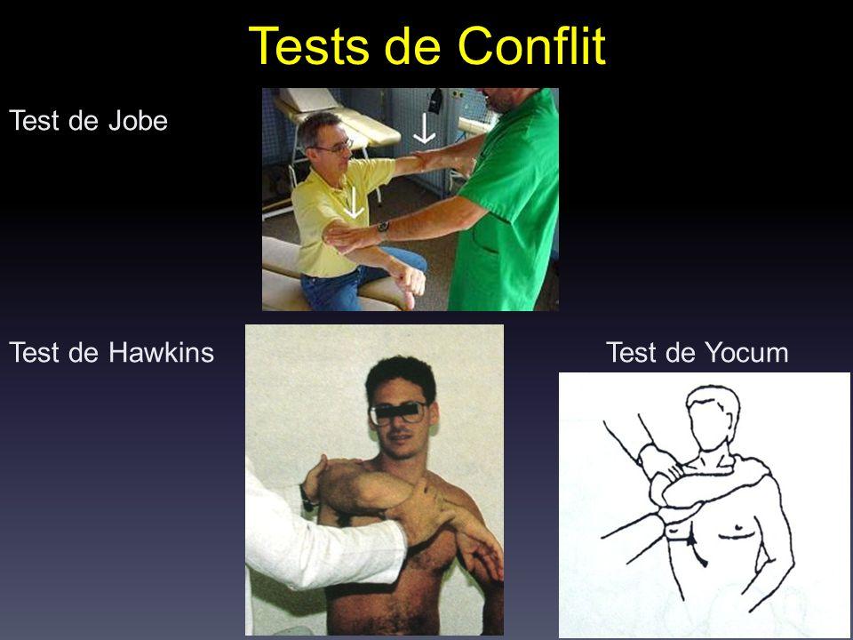 Test de Jobe Test de Hawkins Test de Yocum