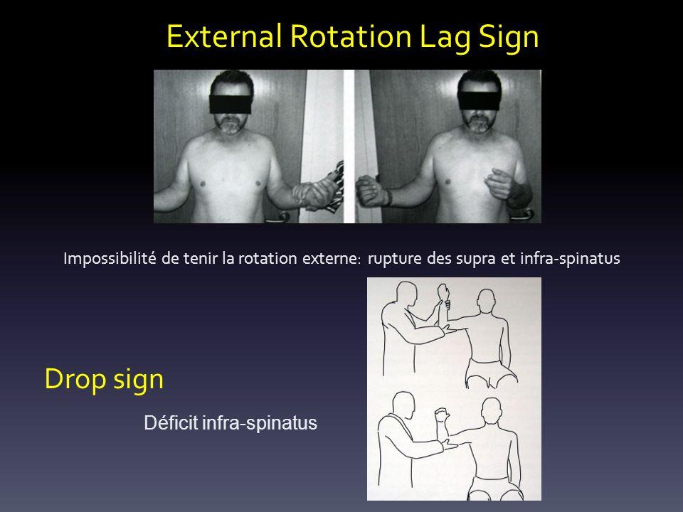 External Rotation Lag Sign