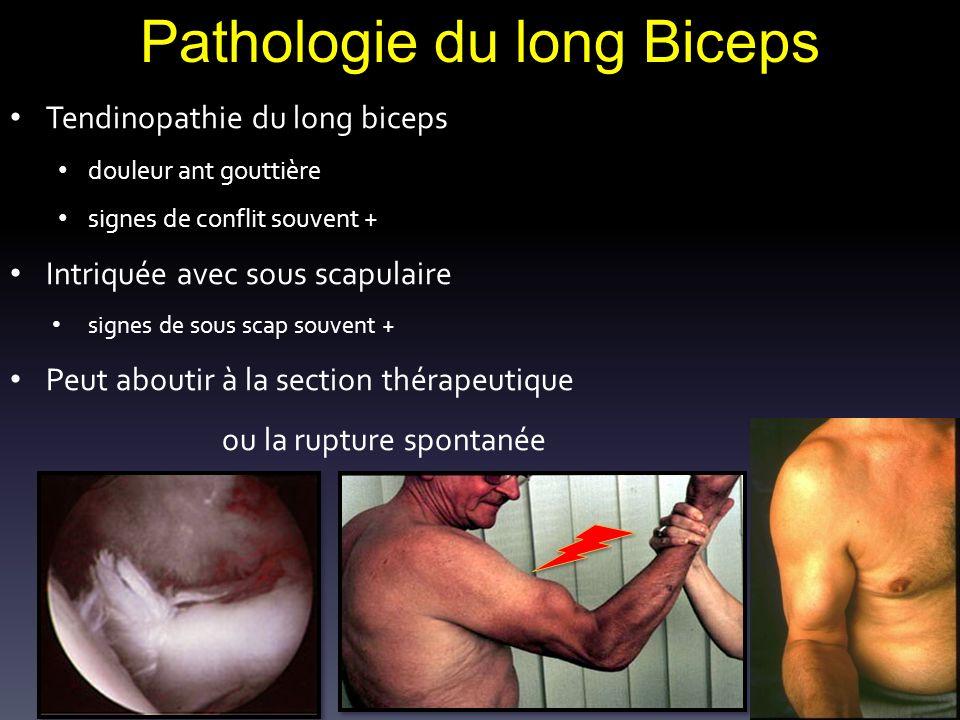 Pathologie du long Biceps