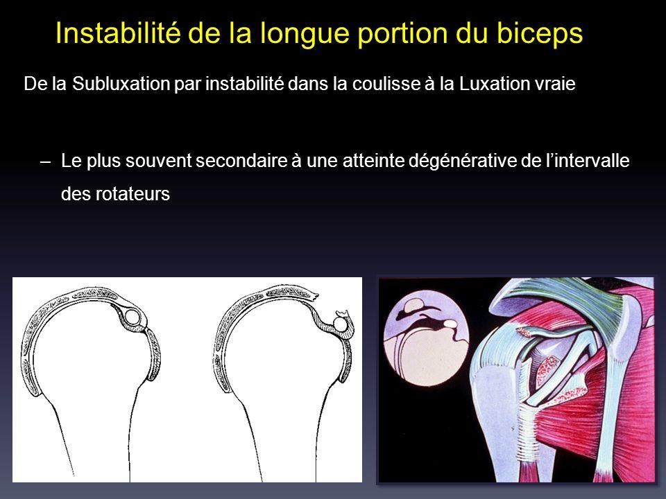 Instabilité de la longue portion du biceps