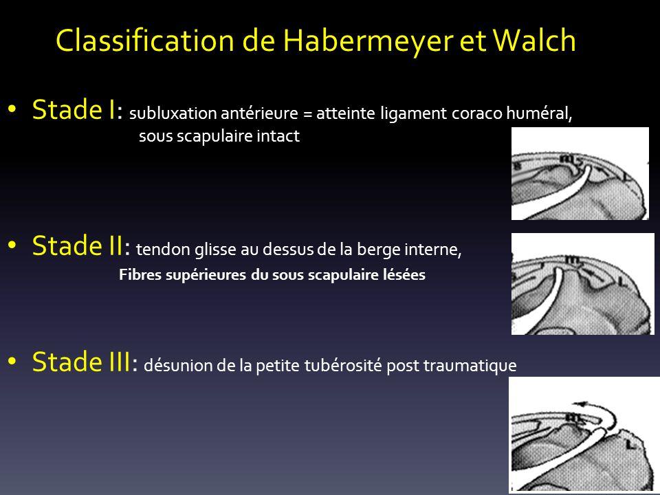 Classification de Habermeyer et Walch