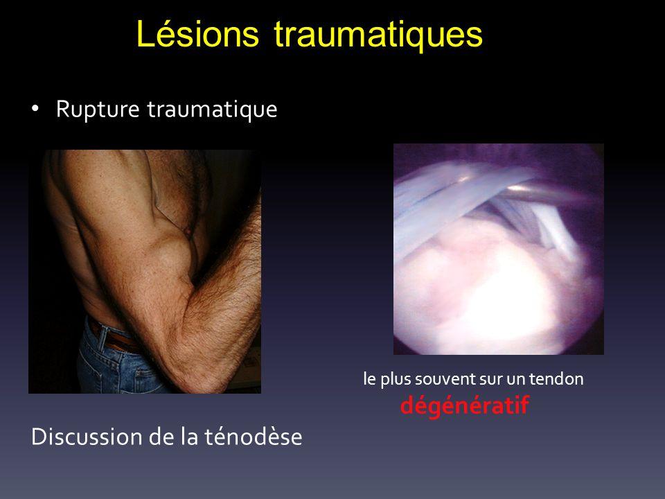 Lésions traumatiques Rupture traumatique Discussion de la ténodèse