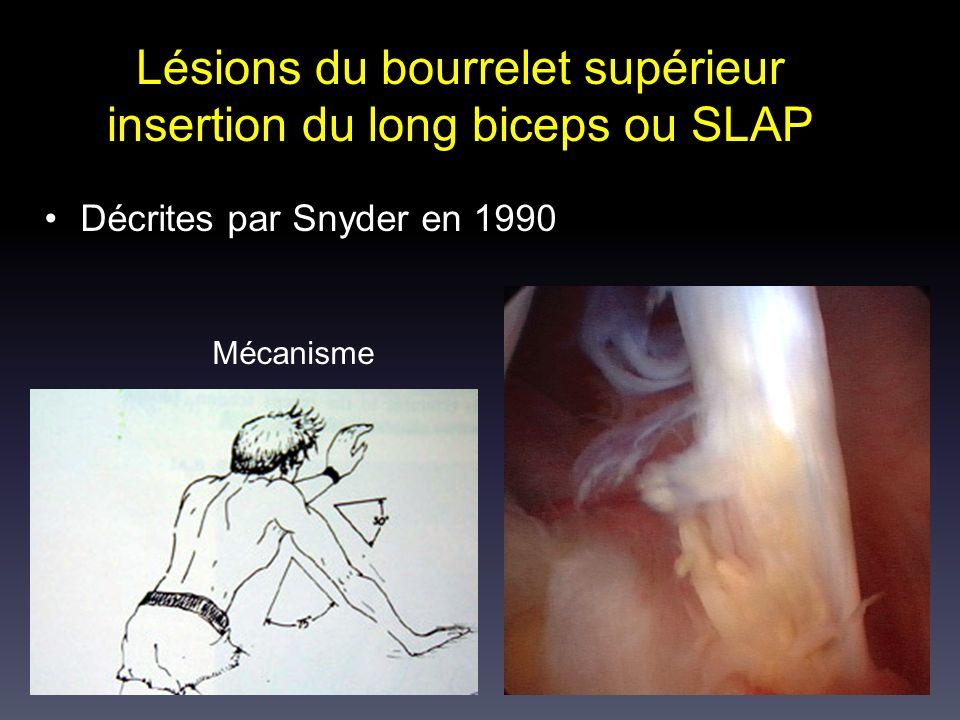 Lésions du bourrelet supérieur insertion du long biceps ou SLAP