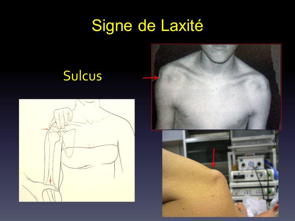 Signe de Laxité Sulcus