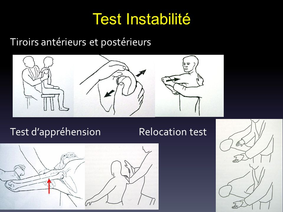 Tiroirs antérieurs et postérieurs Test d'appréhension Relocation test