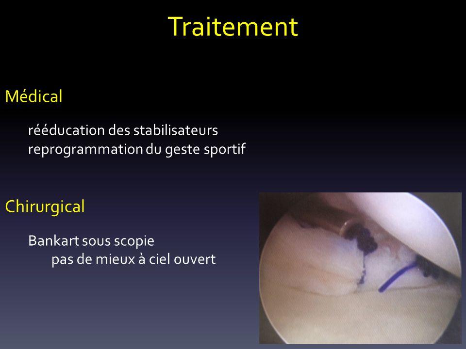 Traitement Médical Chirurgical reprogrammation du geste sportif