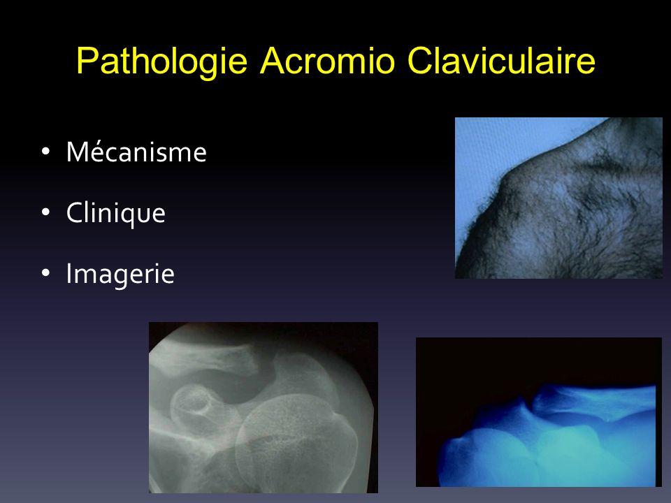 Pathologie Acromio Claviculaire