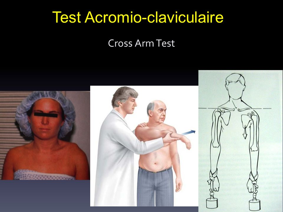 Test Acromio-claviculaire
