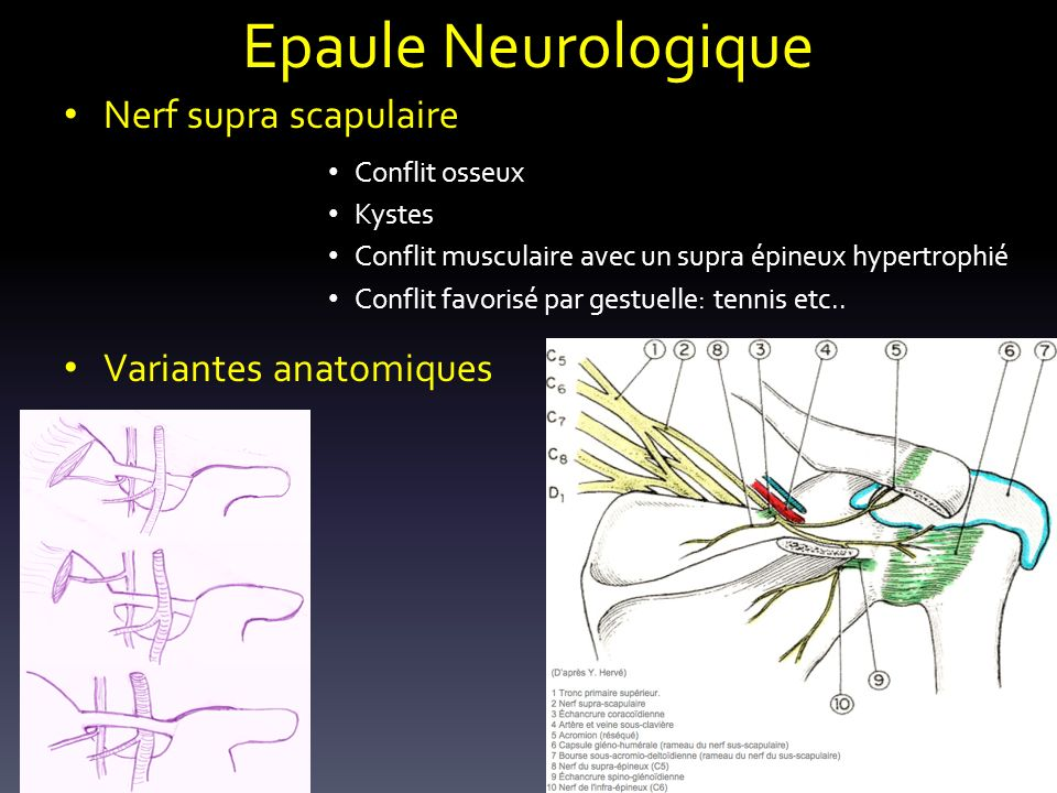 Epaule Neurologique Nerf supra scapulaire Variantes anatomiques