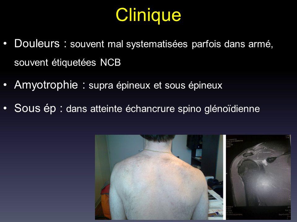 Clinique Douleurs : souvent mal systematisées parfois dans armé, souvent étiquetées NCB. Amyotrophie : supra épineux et sous épineux.