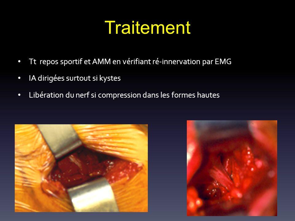 Traitement Tt repos sportif et AMM en vérifiant ré-innervation par EMG