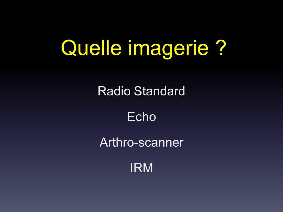 Radio Standard Echo Arthro-scanner IRM