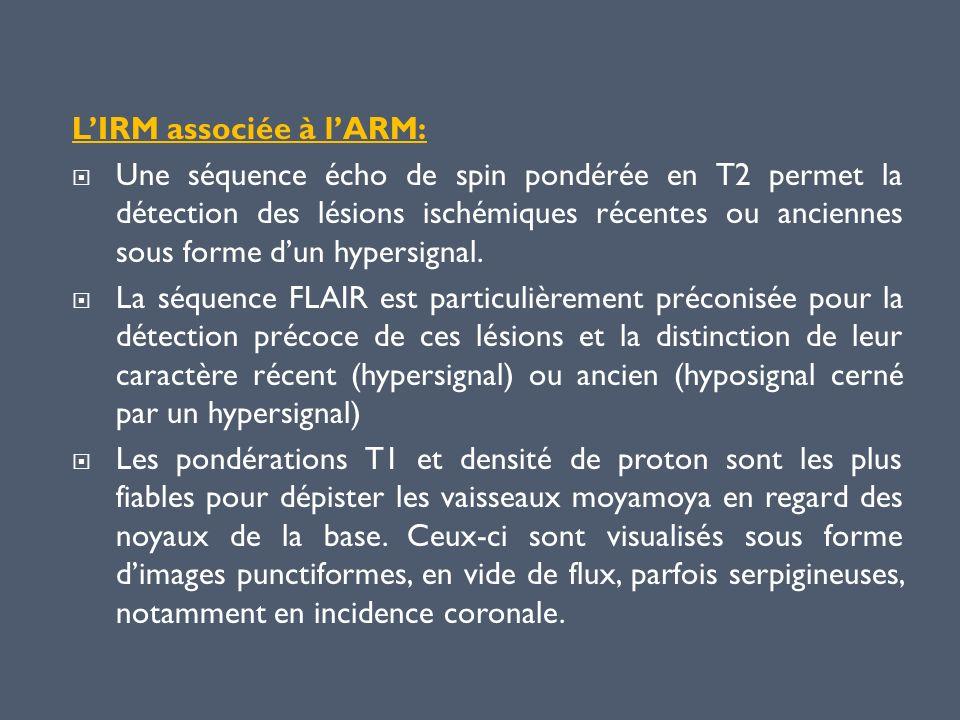 L'IRM associée à l'ARM: