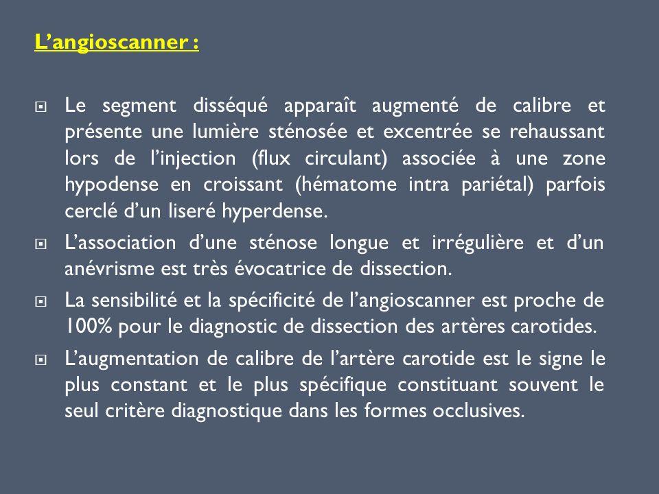 L'angioscanner :