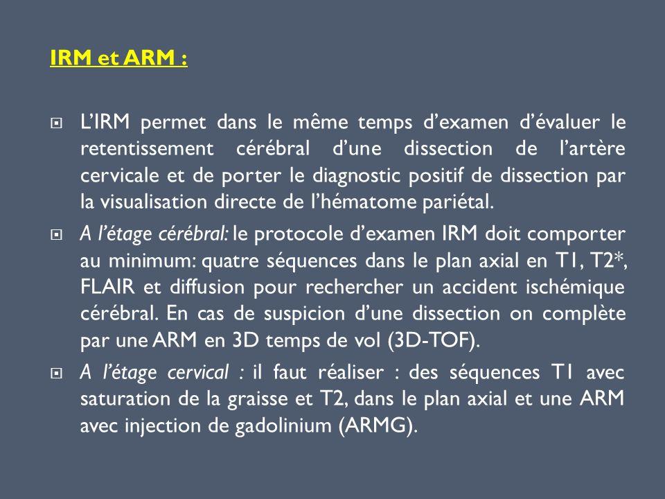 IRM et ARM :