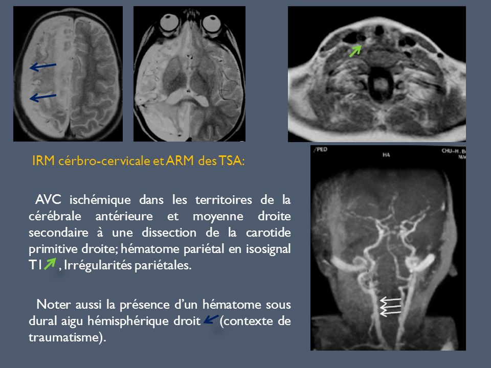 IRM cérbro-cervicale et ARM des TSA: AVC ischémique dans les territoires de la cérébrale antérieure et moyenne droite secondaire à une dissection de la carotide primitive droite; hématome pariétal en isosignal T1 , Irrégularités pariétales.