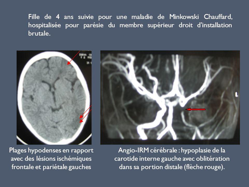 Fille de 4 ans suivie pour une maladie de Minkowski Chauffard, hospitalisée pour parésie du membre supérieur droit d'installation brutale.