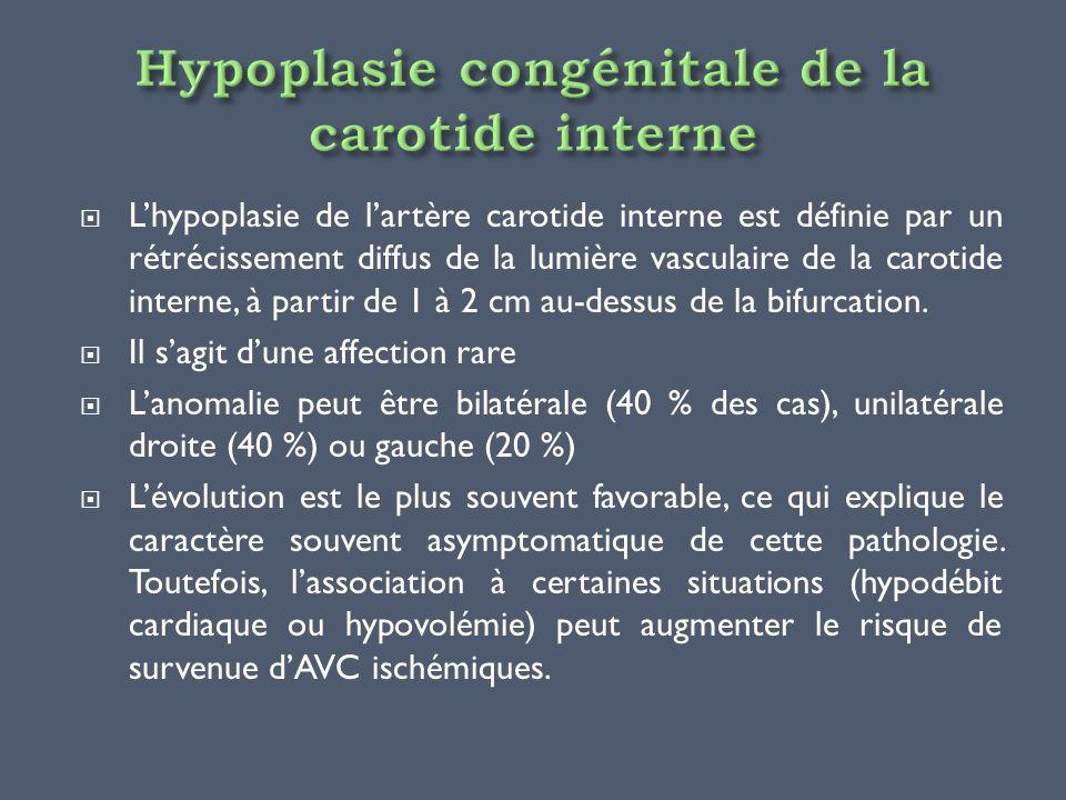 Hypoplasie congénitale de la carotide interne