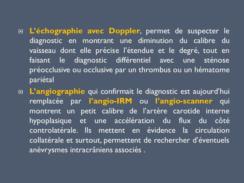 L'échographie avec Doppler, permet de suspecter le diagnostic en montrant une diminution du calibre du vaisseau dont elle précise l'étendue et le degré, tout en faisant le diagnostic différentiel avec une sténose préocclusive ou occlusive par un thrombus ou un hématome pariétal
