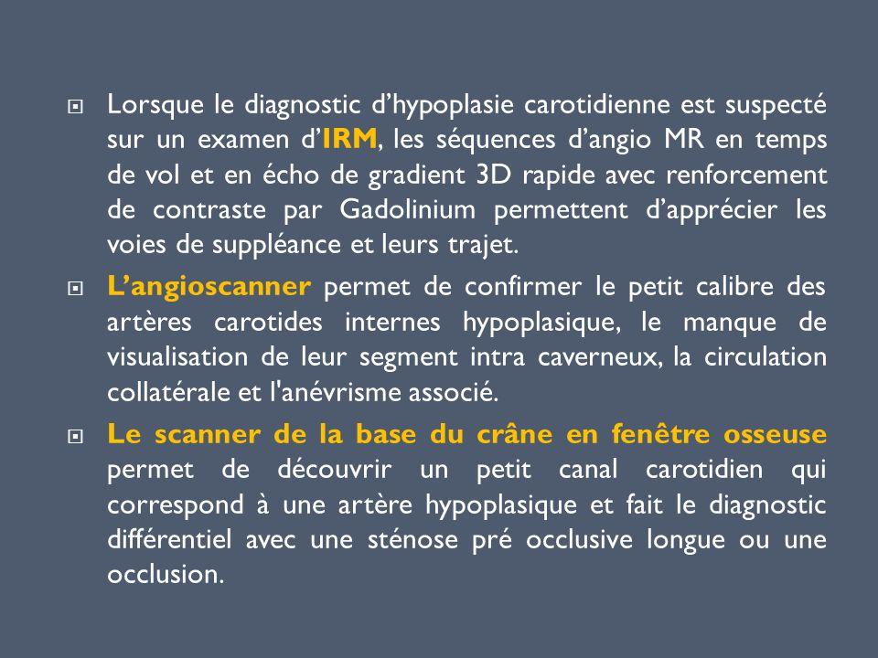 Lorsque le diagnostic d'hypoplasie carotidienne est suspecté sur un examen d'IRM, les séquences d'angio MR en temps de vol et en écho de gradient 3D rapide avec renforcement de contraste par Gadolinium permettent d'apprécier les voies de suppléance et leurs trajet.