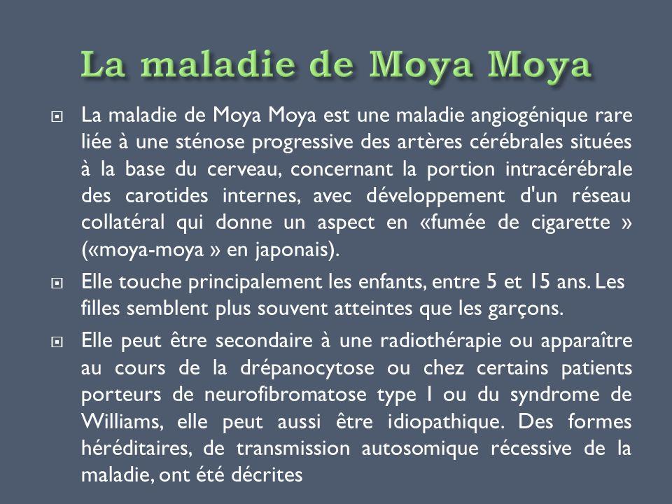 La maladie de Moya Moya