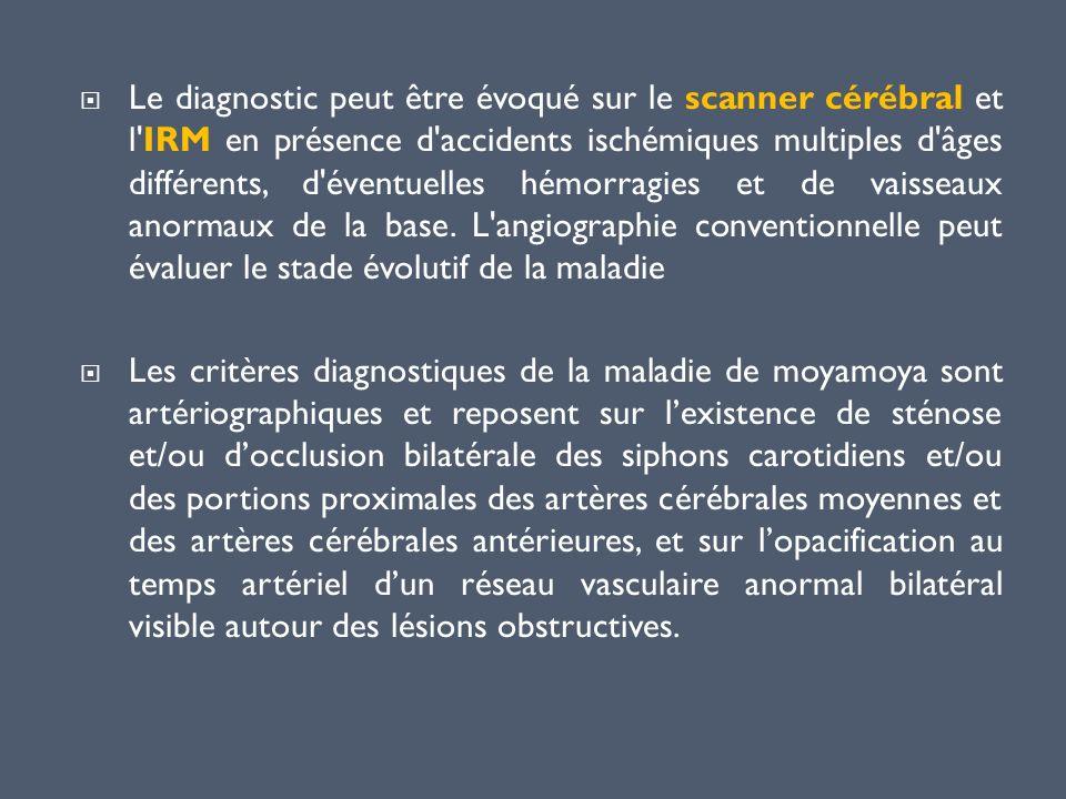 Le diagnostic peut être évoqué sur le scanner cérébral et l IRM en présence d accidents ischémiques multiples d âges différents, d éventuelles hémorragies et de vaisseaux anormaux de la base. L angiographie conventionnelle peut évaluer le stade évolutif de la maladie