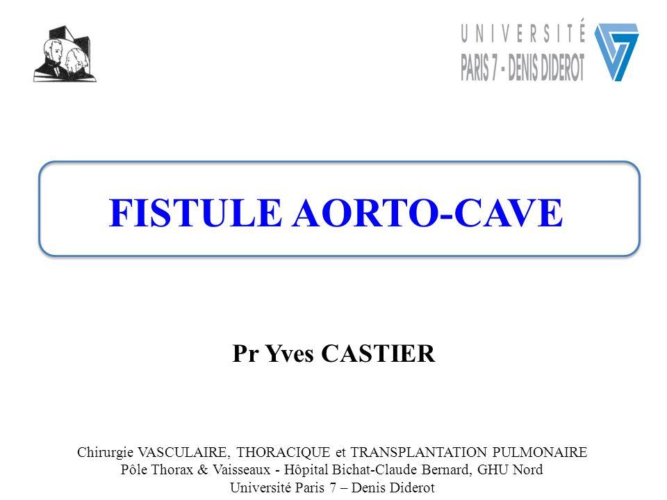 FISTULE AORTO-CAVE Pr Yves CASTIER