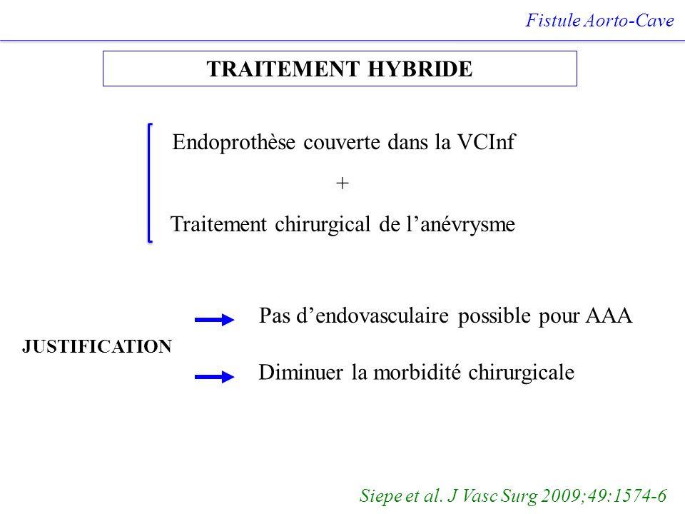 Endoprothèse couverte dans la VCInf +