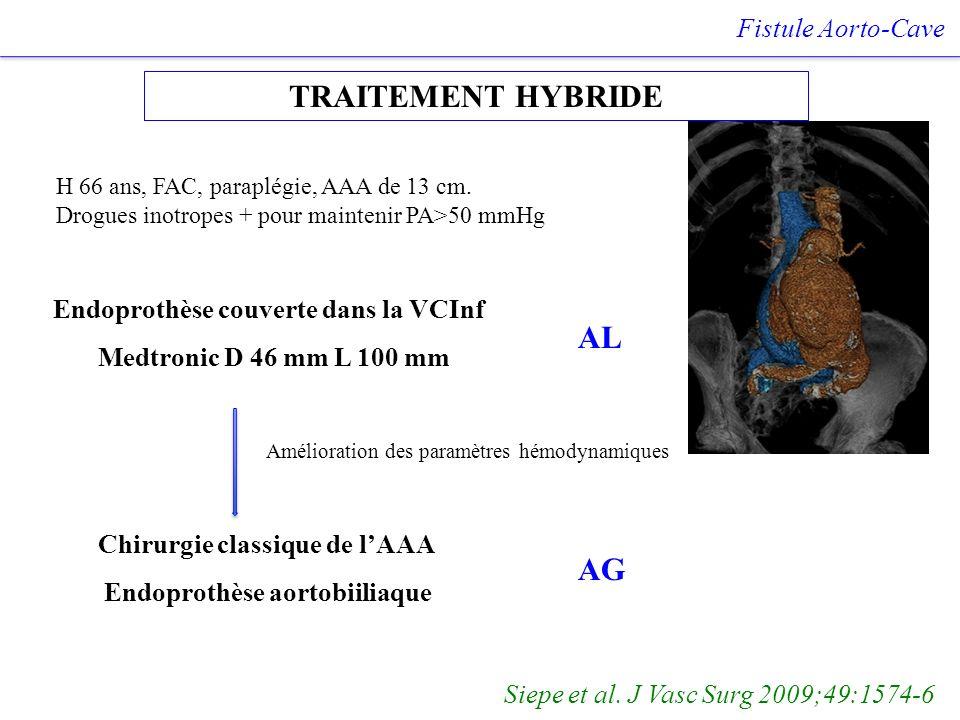 TRAITEMENT HYBRIDE AL AG Fistule Aorto-Cave