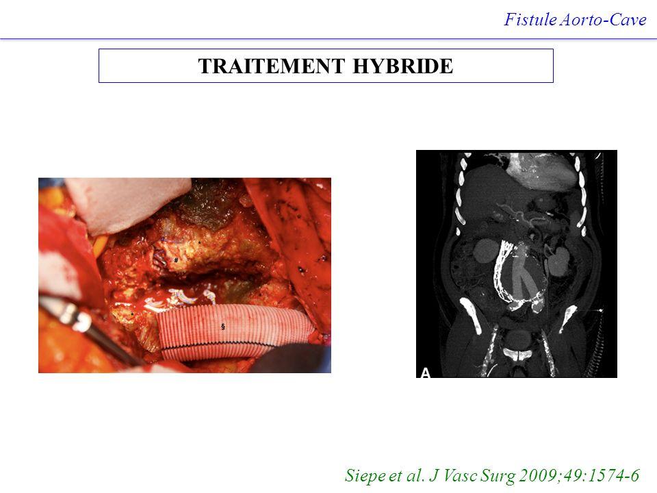 TRAITEMENT HYBRIDE Fistule Aorto-Cave