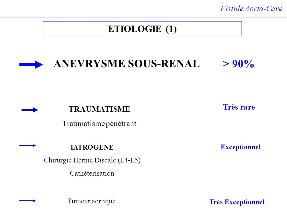ANEVRYSME SOUS-RENAL > 90% ETIOLOGIE (1) Fistule Aorto-Cave