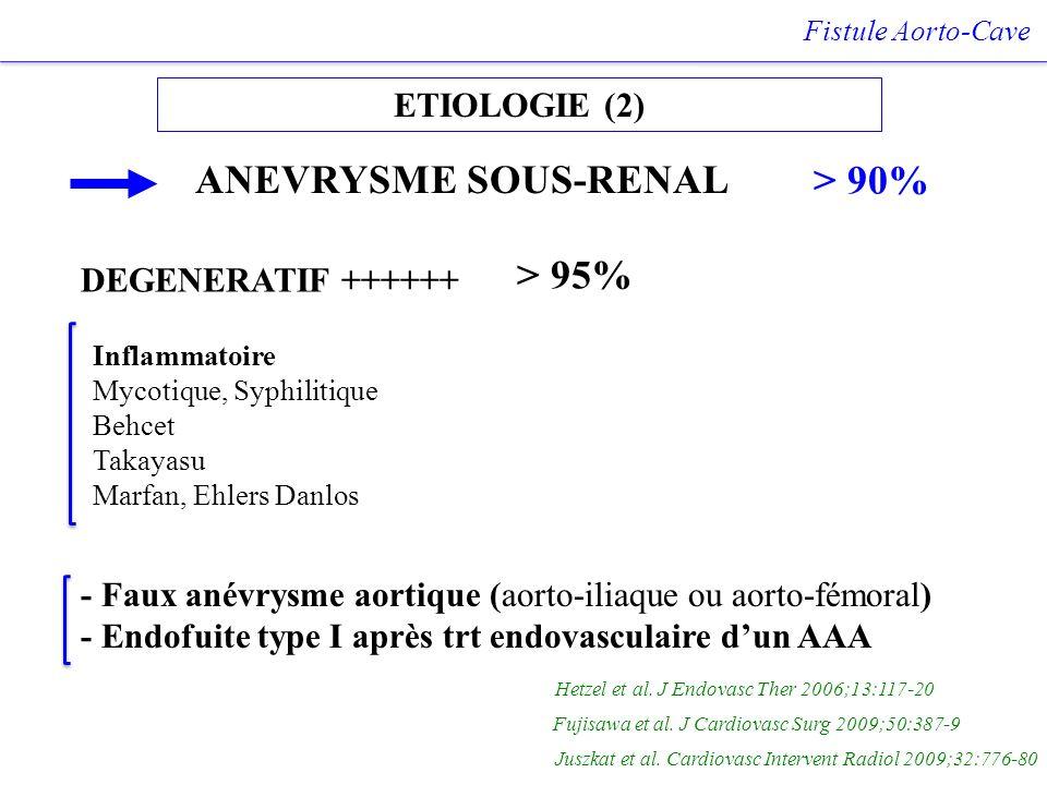 ANEVRYSME SOUS-RENAL > 90% > 95% ETIOLOGIE (2)