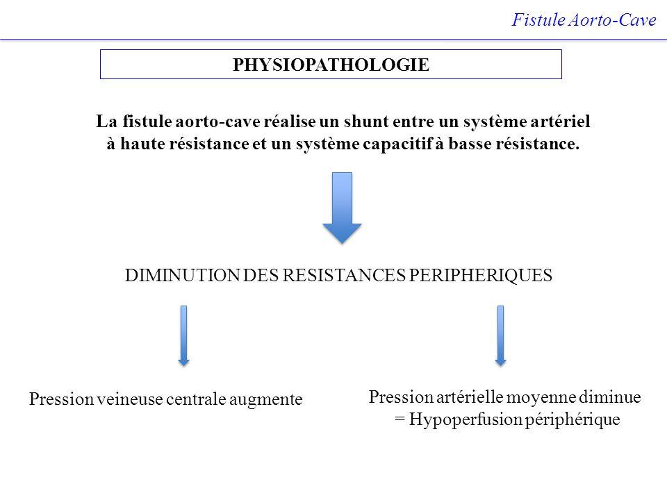 DIMINUTION DES RESISTANCES PERIPHERIQUES