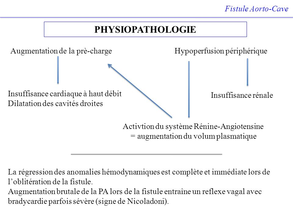 PHYSIOPATHOLOGIE Fistule Aorto-Cave Augmentation de la prè-charge