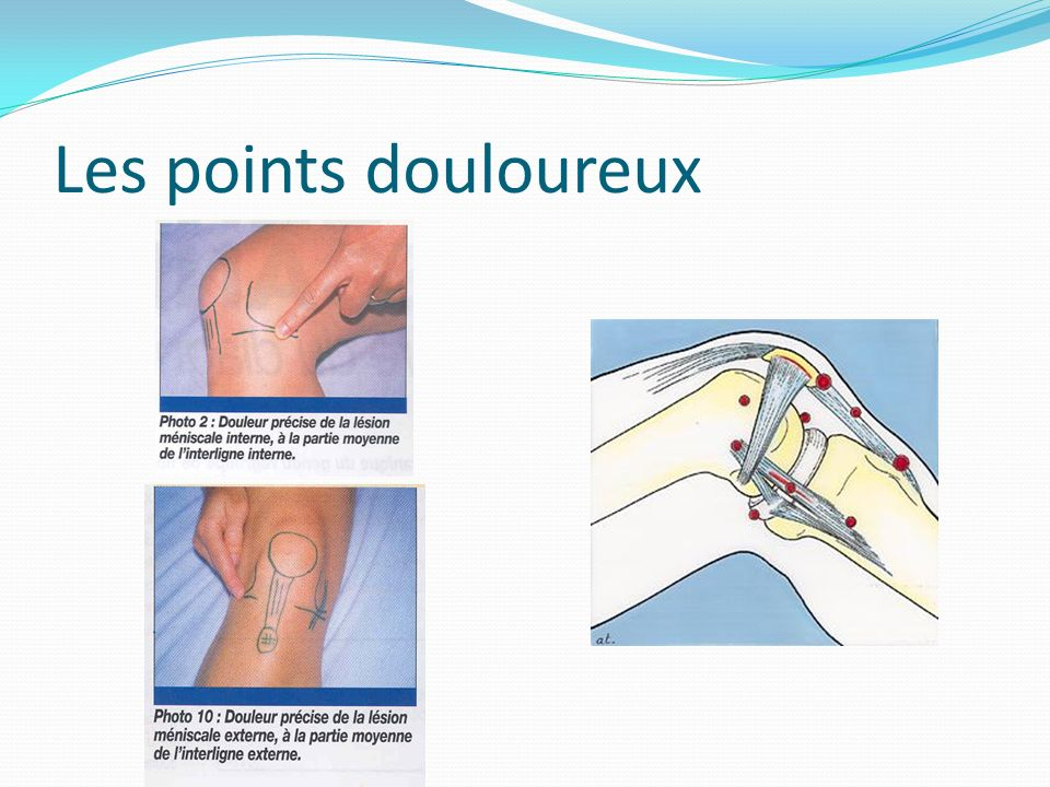 Les points douloureux
